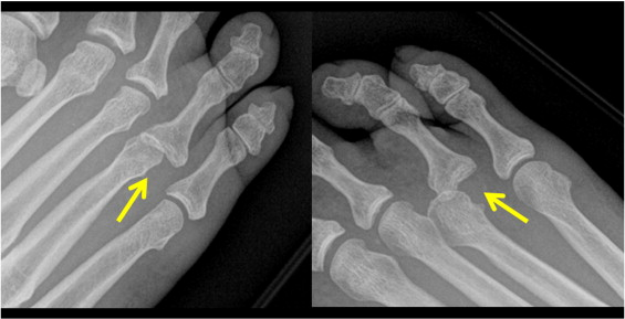 National American University Login >> Irreducible dislocation of the fourth metatarsophalangeal joint—a case report - The American ...